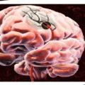 Что такое сенсорная афазия